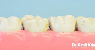 Diş Problemleri / Çene Rahatsızlıkları