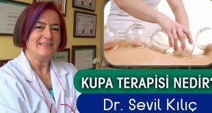 Kupa terapisi (Kuru Kupa tedavisi / bardak çekme) nedir?